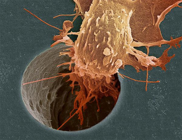 Как выглядит болезнь рака