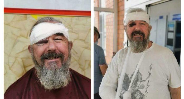 Сергей Зигунов в больнице после задержания ©Фото пресс-службы «Комитета против пыток»