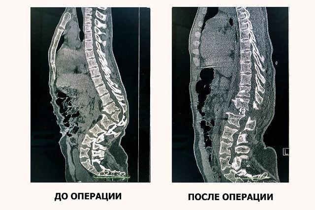 Кубанские врачи удалили пациенту парализовавший ноги горб