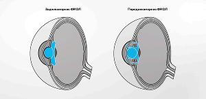 Факичная интраокулярная линза (ФИОЛ) — гибкая линза специальной формы, имплантируемая через микропрокол в роговице внутрь глаза перед или за радужной оболочкой. Швы не требуются, так как длина прокола составляет около 2,2 мм.