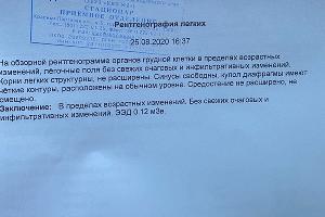 Результаты рентгена в ККБ № 2 ©Фото Никиты Быкова, Юга.ру