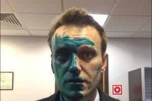 ©Алексей Навальный Фото из микроблога Алексея Навального в твиттере, twitter.com/navalny